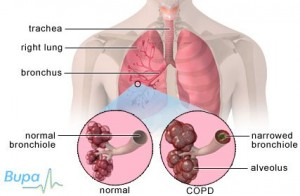 copd diagram
