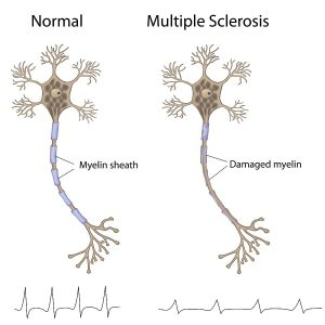 multiple sclerosis effects